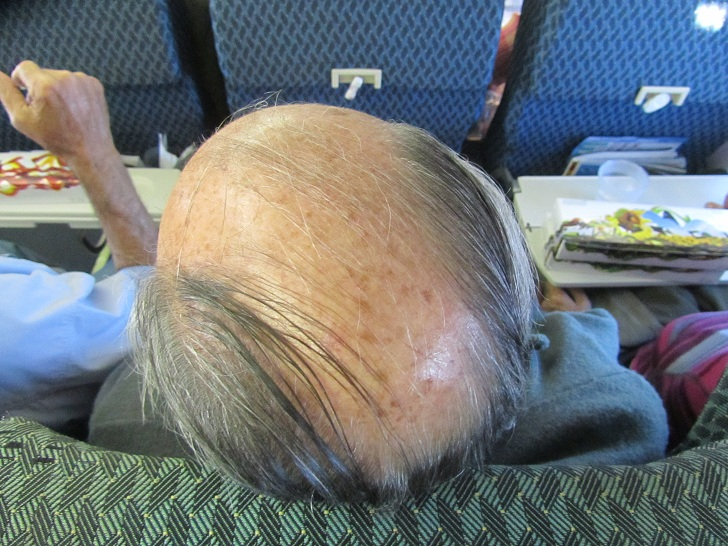 The Calafate Combover